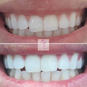 blanqueamiento-dental-el-prat-del-llobregat