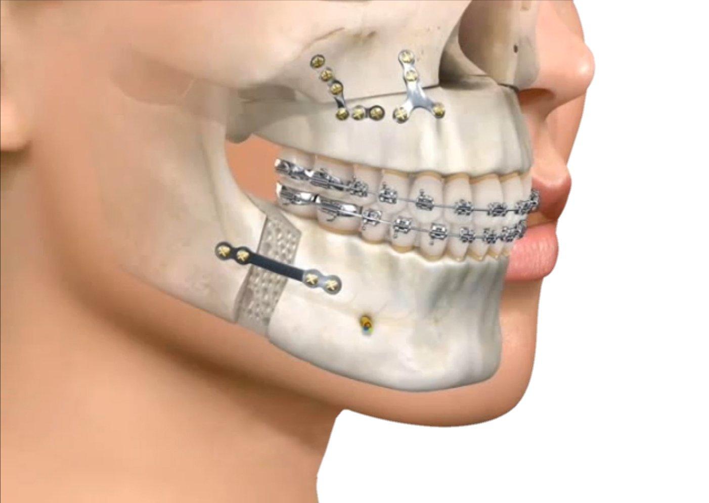 Cirugia ortognática