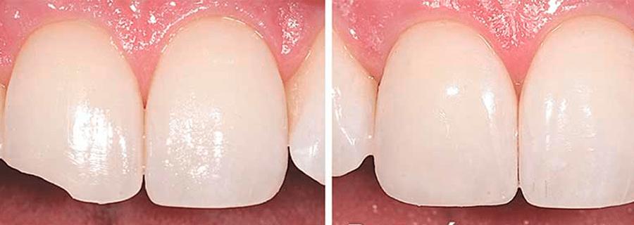 Adhesión dental