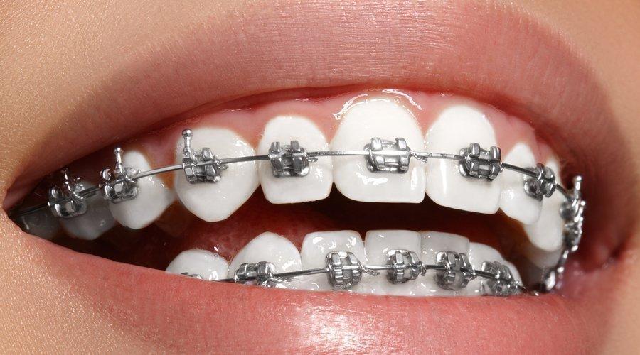 mueven los dientes