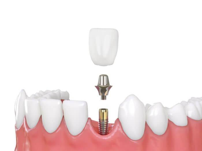 implantes-de-carga-inmediata-el-prat-del-llobregat