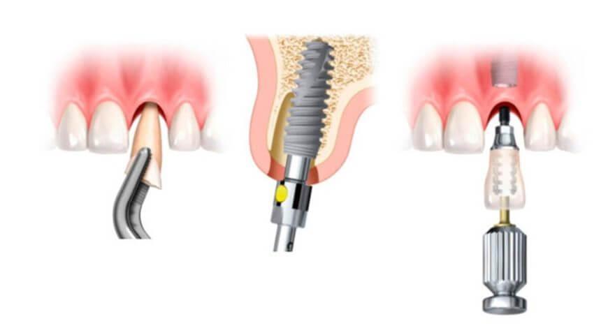 implantes-dentales-carga-inmediata
